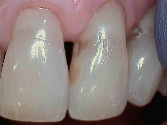 Kahului Dentist